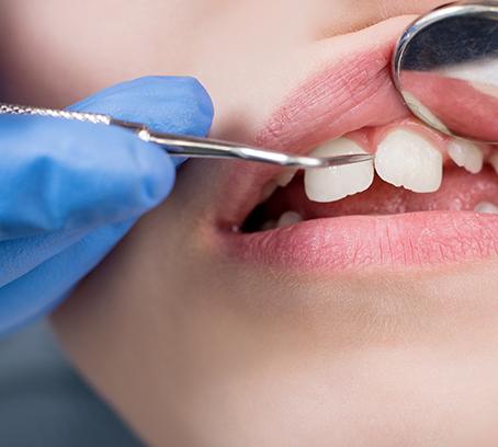 プラークコントロール(歯垢・歯石の除去)